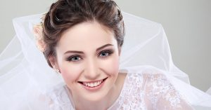 Chattanooga bridal teeth whitening